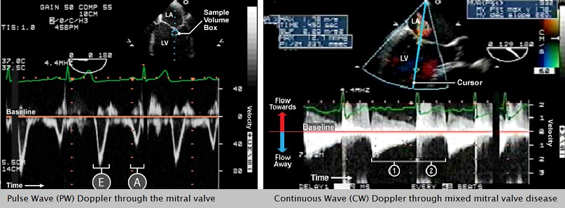 Spectral Doppler (PW and CW) images _ CAE Healthcare
